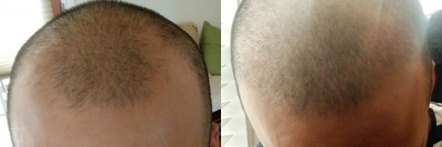 Male FUE Hair Transplant